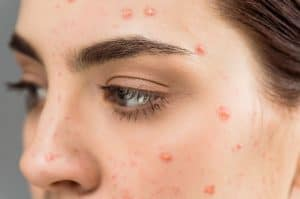 Best Skin Supplements for Acne
