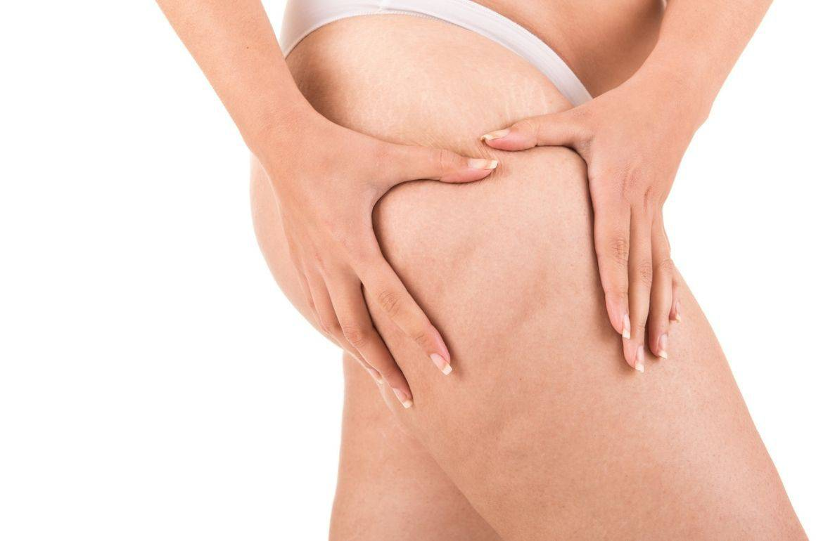 stages of cellulite